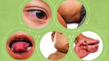 Link permanente para: Sintomas mais comuns